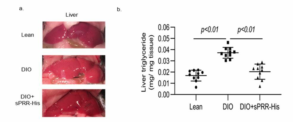 Recombinant sPRR ameliorates fatty liver as well as other components of metabolic syndrome in mice with diet-induced obesity. Normal diet (lean); diet-induced obesity (DIO); histidine-tagged sPRR (sPRR-His).