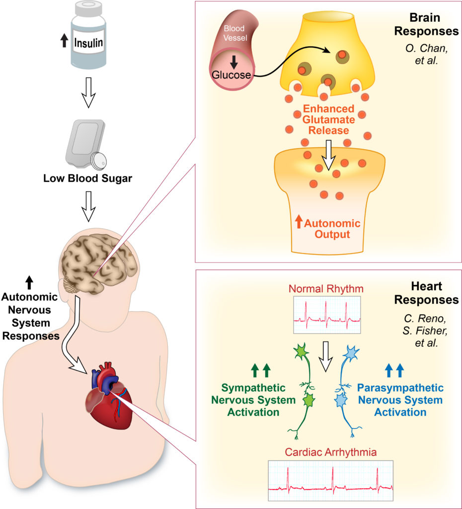 Graphic- Neural and Cardiac Responses to Hypoglycemia
