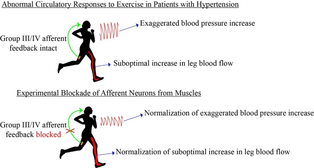 Graphic- Mechanisms of Circulatory Abnormalities and Fatigue in Patients with Cardiovascular Diseases